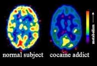 effetti cocaina